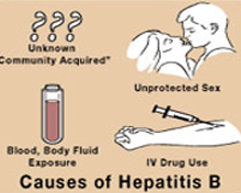 hepatitis-causes